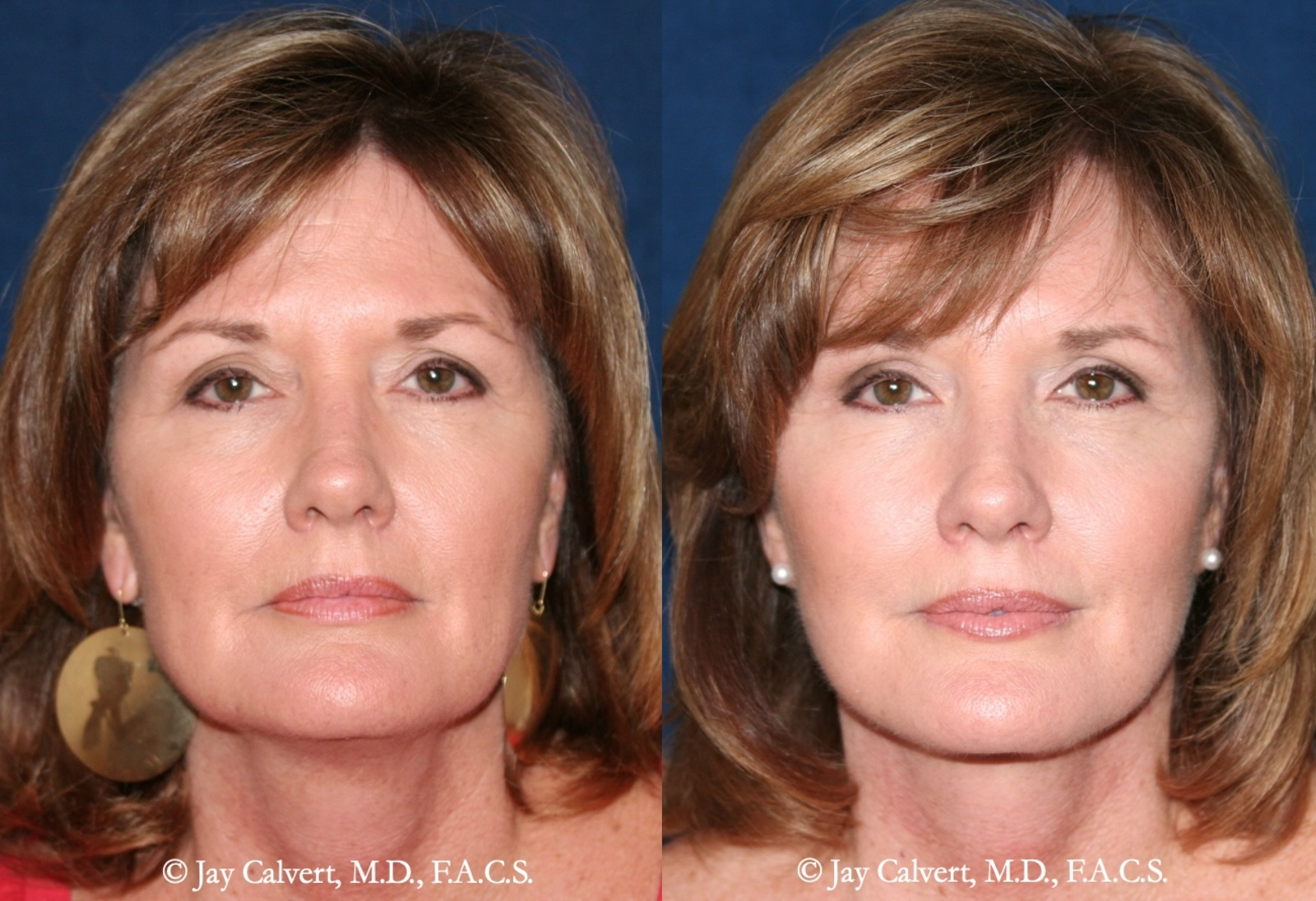 Dr. Jay Calvert, Beverly Hills Plastic Surgeon, Comments on Baby Boomers Rising Facelift Trend